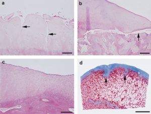L'aspetto delle lesioni della cartilagine del ginocchio